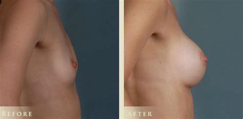 Breast enlargement cosmetic surgery youtube jpg 712x350